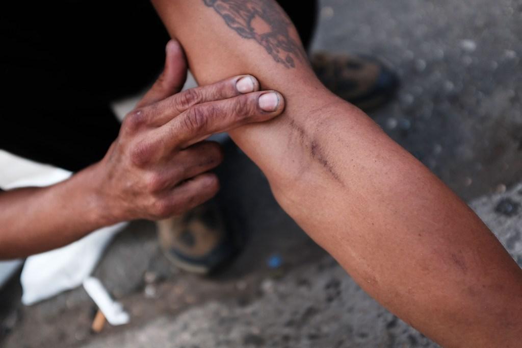 Opioid Epidemic Plagues Section Of Bronx Neighborhood